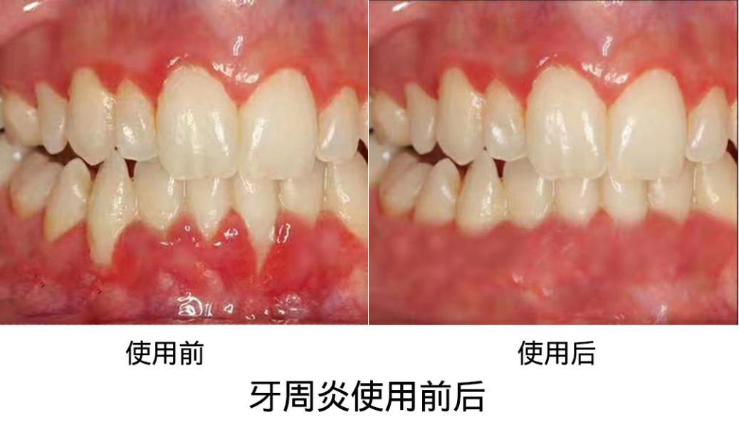 佳惠安抗菌喷剂敷料杀(抑)菌临床检验结论